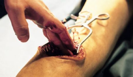 Anatomy 2  (2003)